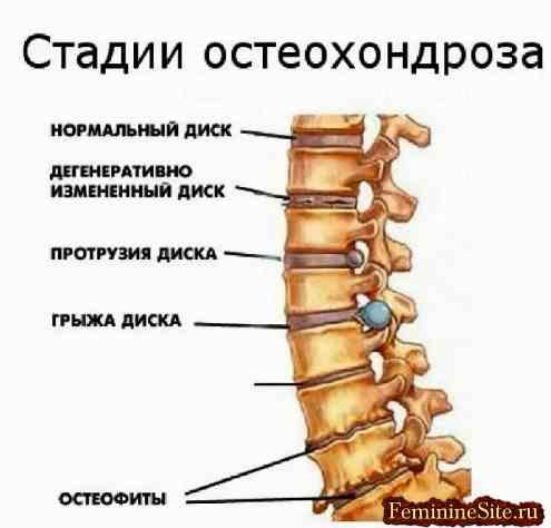 Крестцовый остеохондроз симптомы