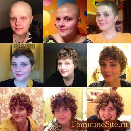 когда вырастут волосы после химиотерапии