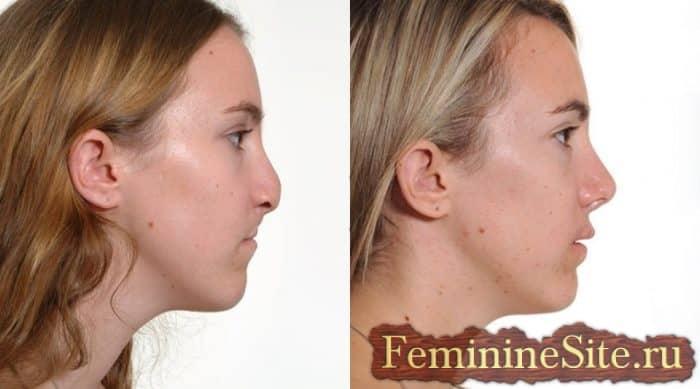 Увеличение носа