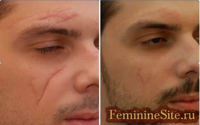 рубцы на лице