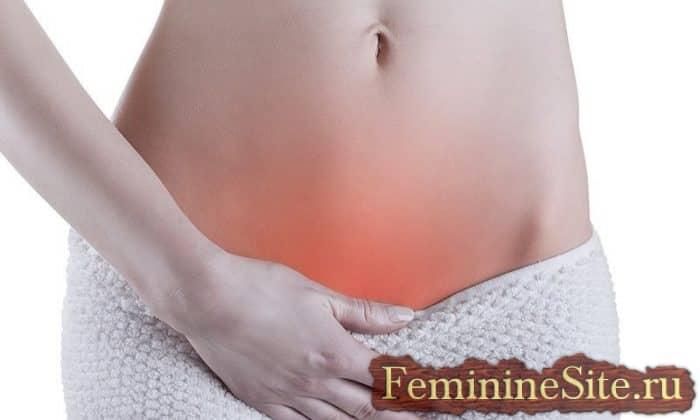 Молочница у женщин